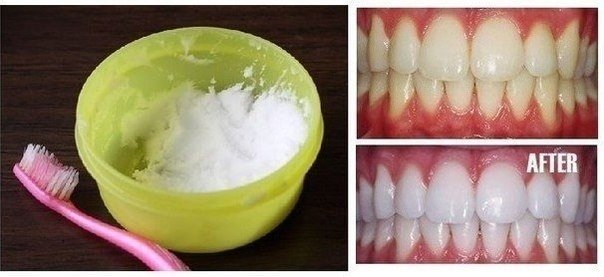 DIY Natural Teeth Whitening in Minutes at Home (Video)
