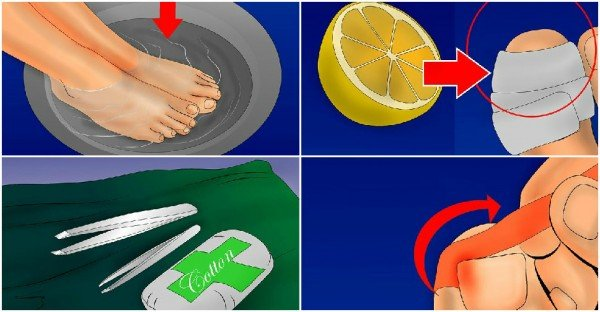 How to Get Rid of Ingrown Toenails – Natural Home Remedy (Video)