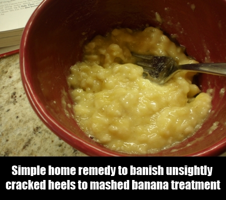 4 Effective Home Remedies for Sore, Cracked and Stinky Feet5