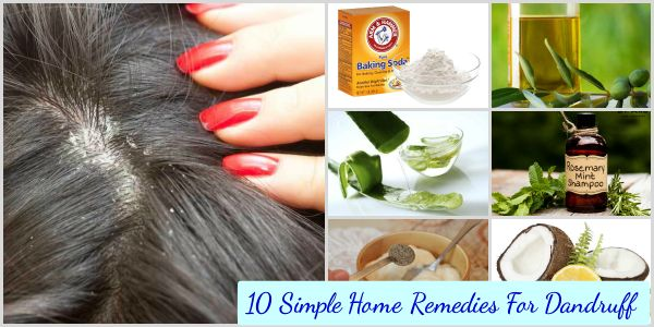 how to prevent dandruff home remedies