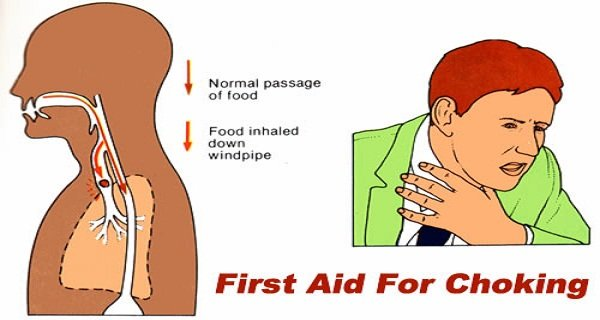 Choking First Aid How To Save Yourself If You Are Choking Alone