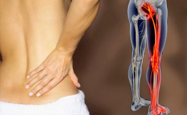 8 Home Remedies For Sciatica Pain That Actually Work