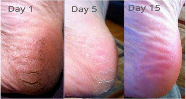After Doing THIS, You Will Never Suffer From Cracked Heels, Corns and Calluses Again