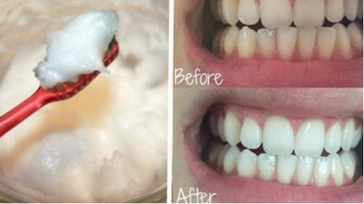 How to Oil Pull for Teeth Whitening and Body Health