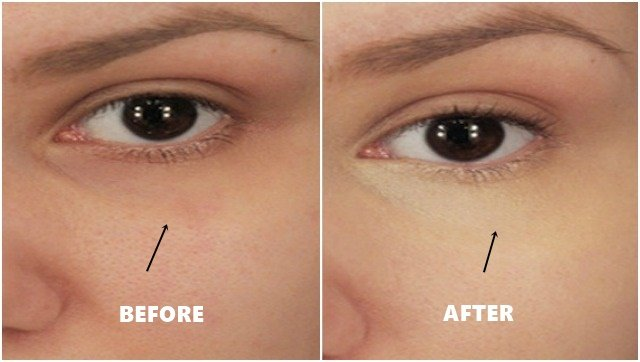 How To Remove Dark Circles Under eyes with one ingridients